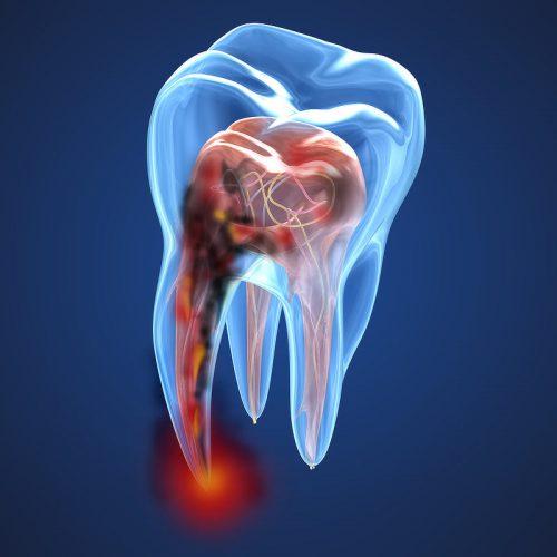 conductos dentro del diente