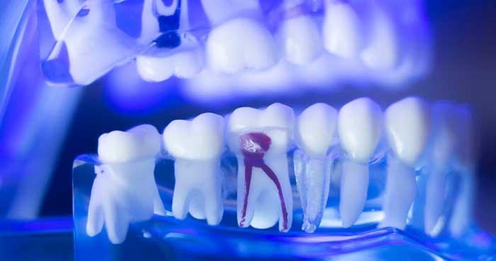 endodoncia no duele en biancadent