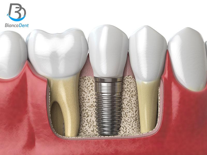 Implante dental en Castellon