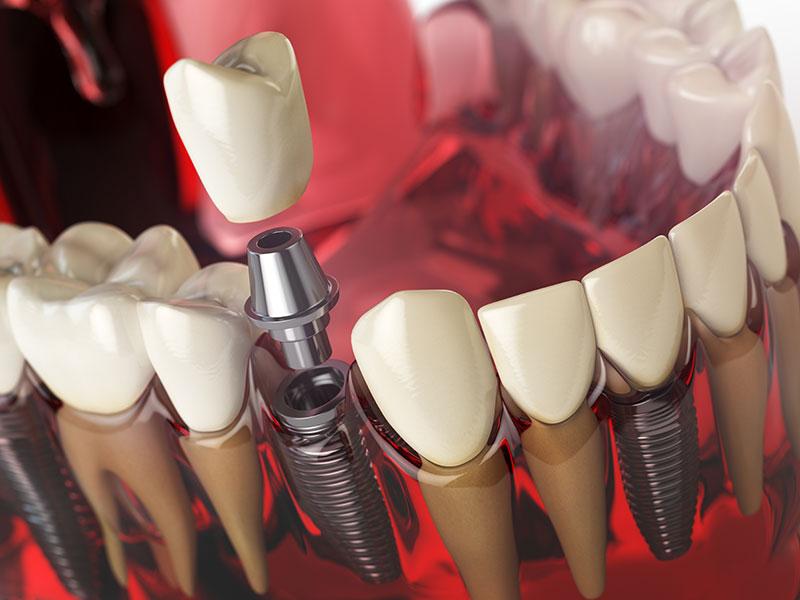 Piezas o componentes de un implante dental