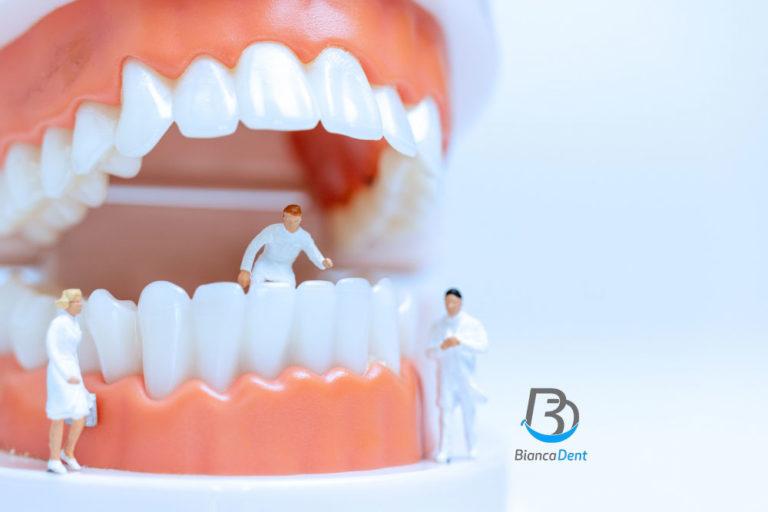 Elegir mejor clinica dental en Castellon