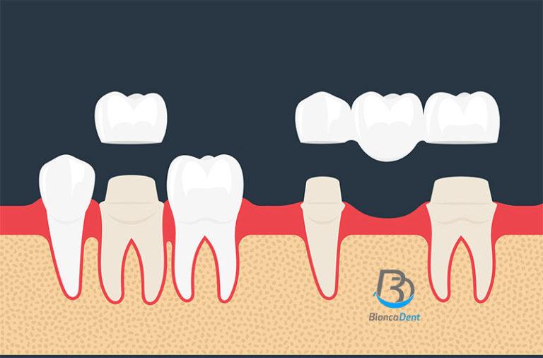 Coronas dentales en Castellón
