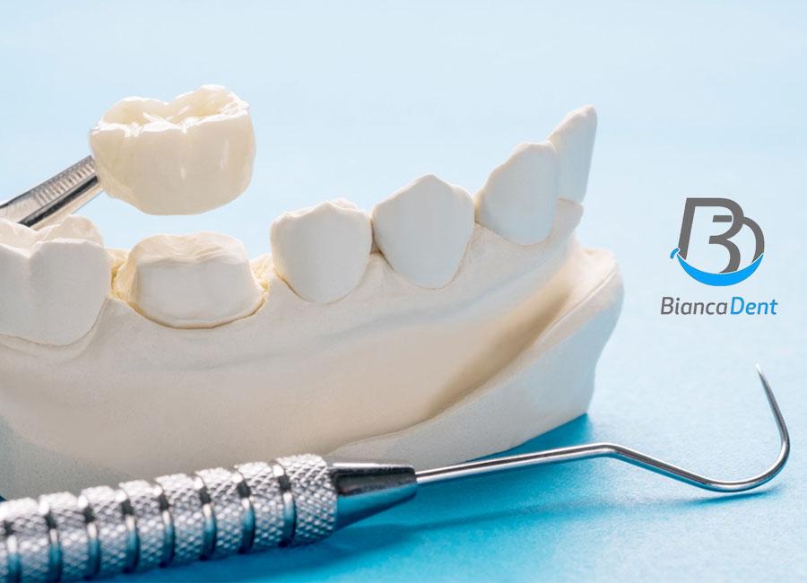 Funda dental en Castellón